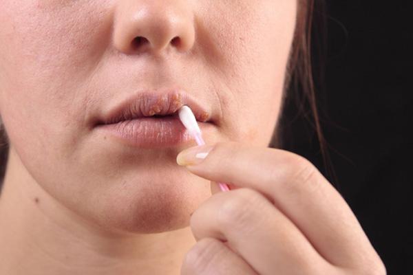 Герпетический (герпесный) стоматит у взрослых: симптомы и лечение