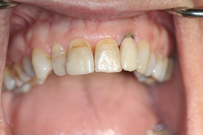 Корни зубов оголись