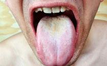Эффективное лечение кандидозного стоматита у взрослых