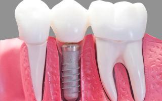 Проведение костной пластики перед имплантацией зубов