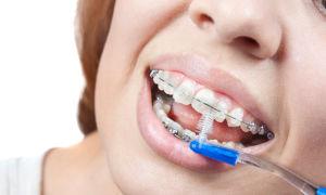 Правила гигиены полости рта во время ношения брекетов