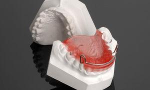 Роль аппарата Андрезена-Гойпля в ортодонтии