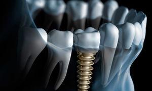 Сколько стоит имплантация зубов?