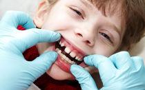 Ортодонтическое лечение на аппарате Френкеля