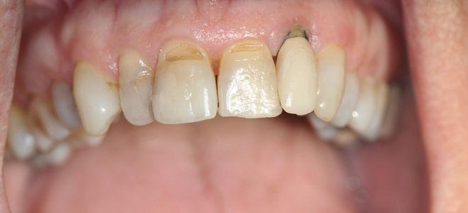 Оголение шейки и корней зубов