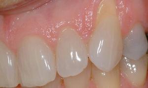 Проблема отхождения десны от зуба