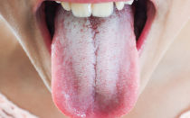 Особенности лечения стоматита на языке