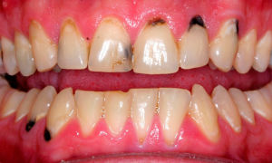 Как бороться с черным налетом на зубах?