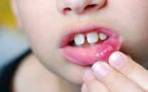 Лечение герпетической формы стоматита у детей