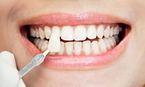 Современная эстетика зубов с помощью виниров