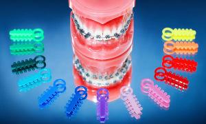 Особенности лигатурных и безлигатурных брекетов