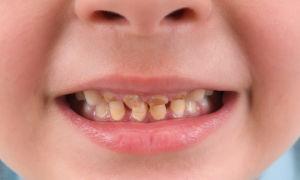 Зубной налет у ребенка: вариант нормы или повод для беспокойства?
