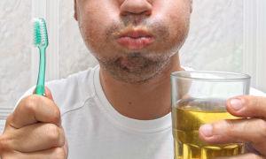 Правила гигиены полости рта при стоматите