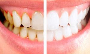 Причины появления и способы удаления налета на зубах