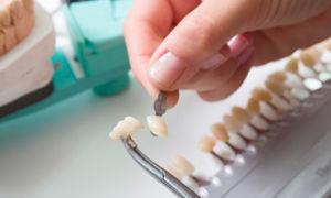Сравнение коронок и виниров для реставрации зубов
