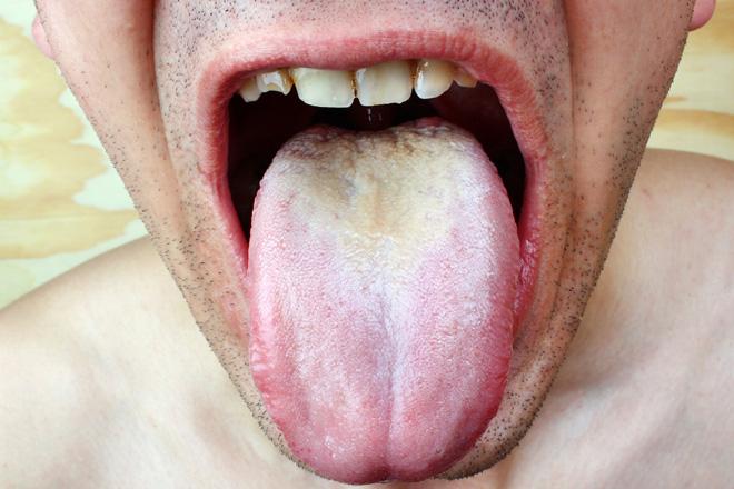 Стоматит и молочница у мужчин