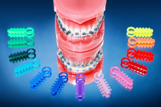 лигатурные брекеты