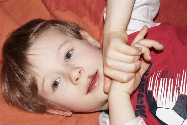герпес на губе у ребенка