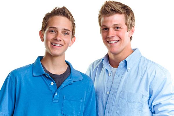 молодые люди в брекетах Damon