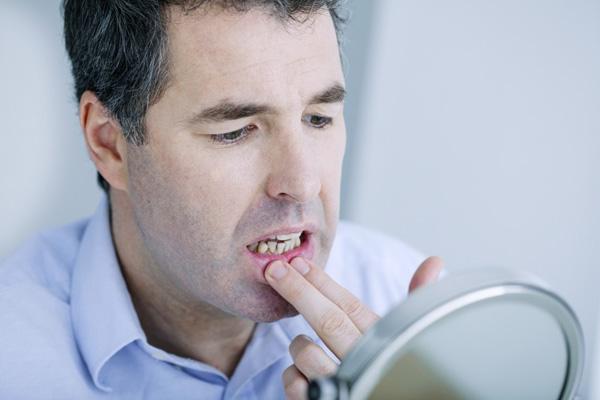 мужчина осматривает полость рта