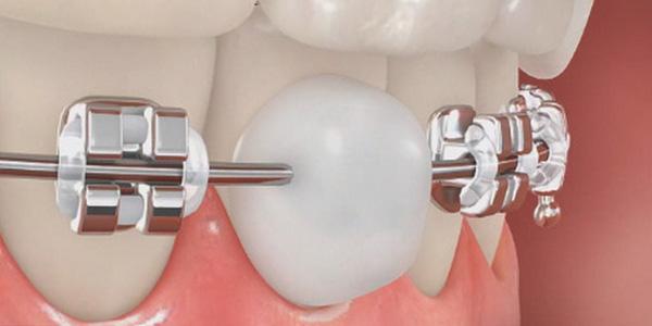 стоматологический воск на брекете