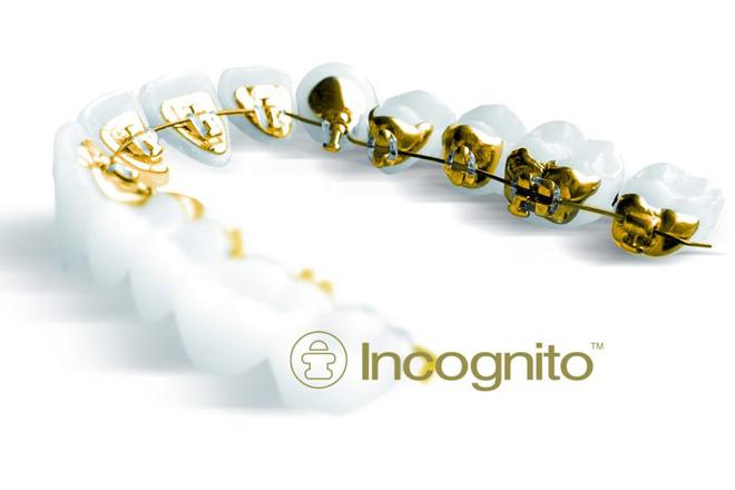 лингвальная брекет-система Incognito