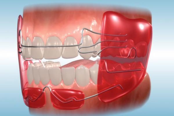расположение аппарата Френкеля на зубах