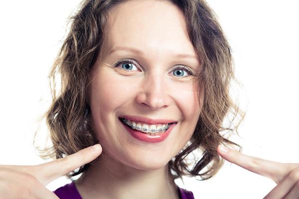 взрослая женщина с металлическими брекетами
