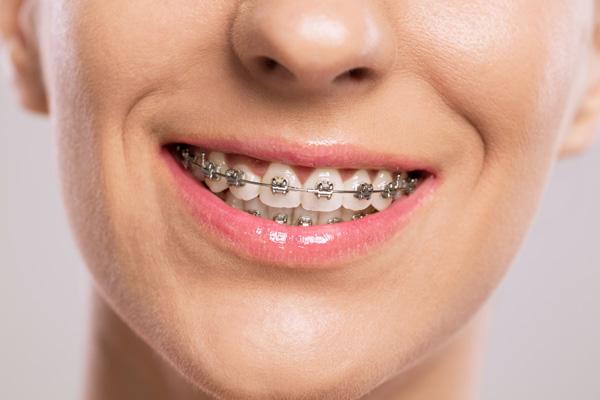 зубные брекеты из металла