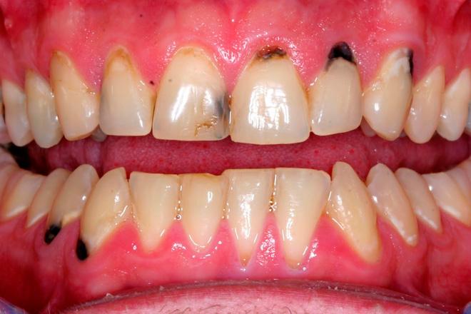 черный налет на зубах