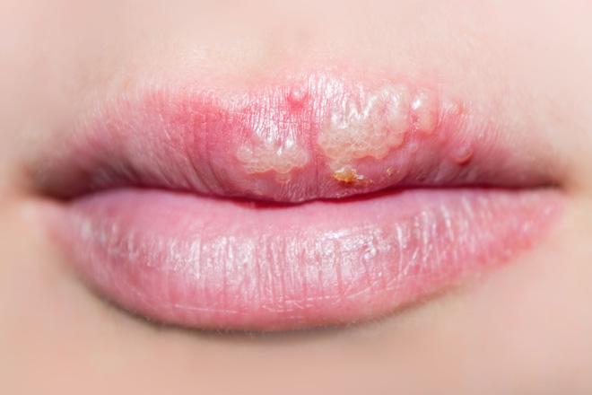 герпетический стоматит на губах