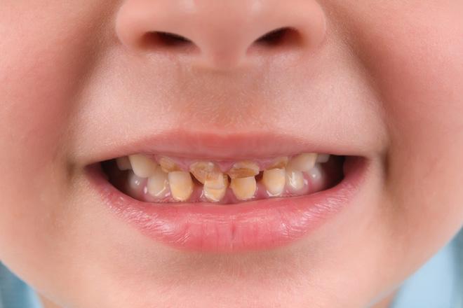налет на зубах у ребенка