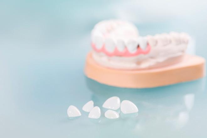 стоматологические накладки на зубы
