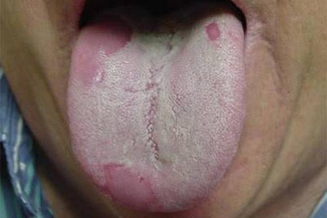 Зеленый налет на языке причины возникновения и методы лечения