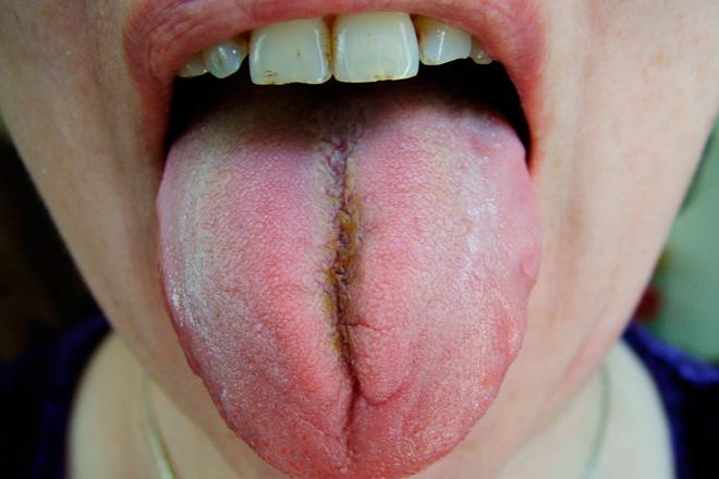 Коричневый налет на языке у взрослых и детей, причины налета темного цвета на языке