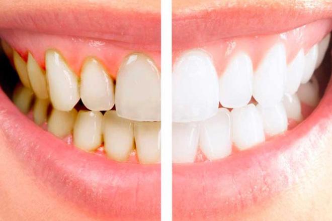 зубной налет и его отсутствие