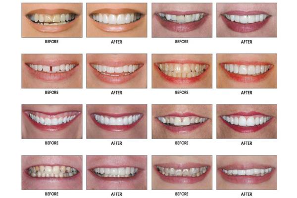 фото зубов до и после люминиров
