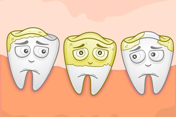 графическое изображение налета на зубах
