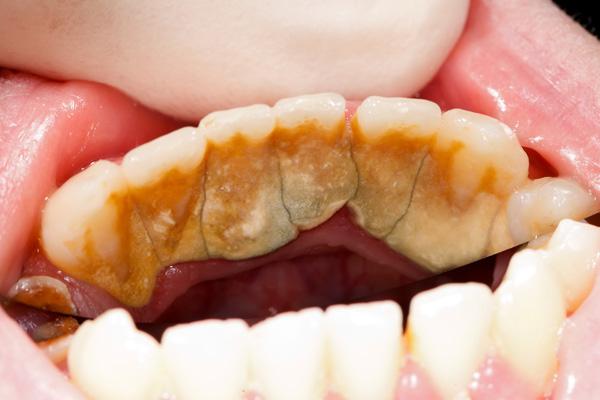 коричневый налет на зубах