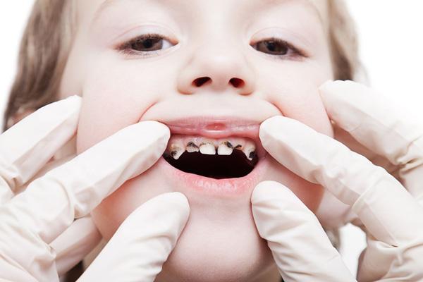 налет на зубах перерос в кариес