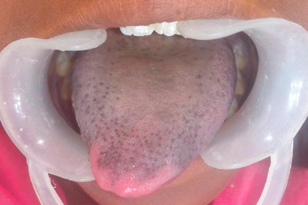 патологическая форма серого налета на языке