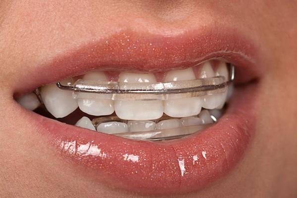 съемный ретейнер на зубы
