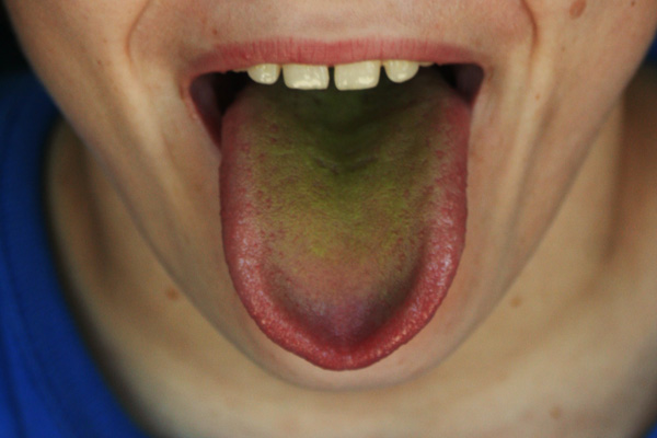 желтый язык после употребления газированной воды