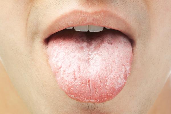 грибковый налет на языке