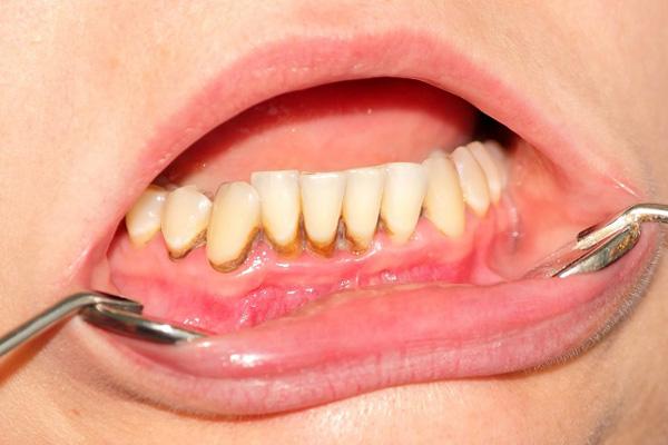 обильное скопление зубного налета