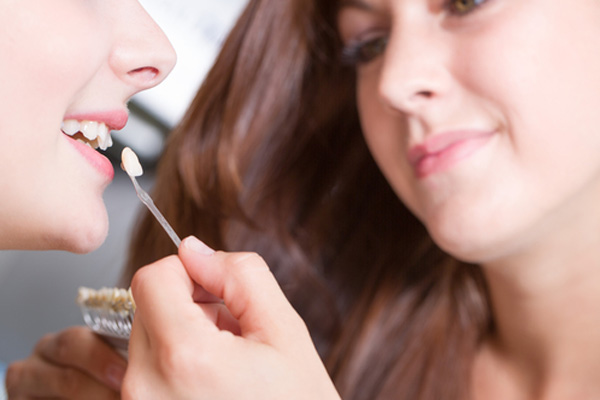 подбор цвета виниров на зубы