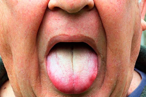 белый налет у корня языка