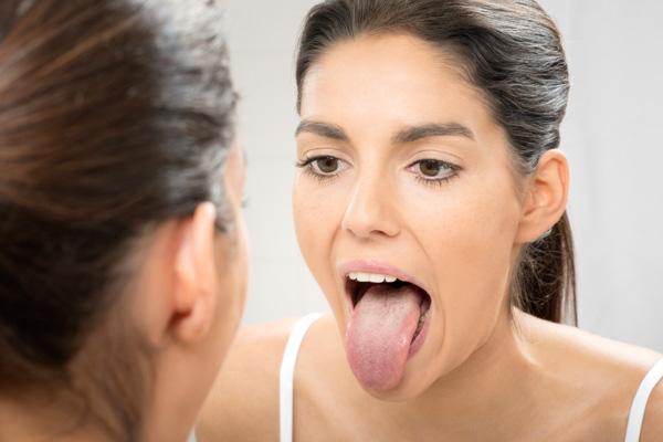 стоматит на корне языка