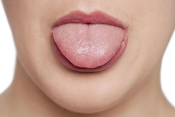 здоровый язык без налета