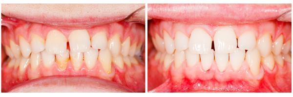 зубы после чистки налета у стоматолога